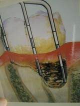 ポケット歯石